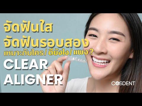 ฟันสวย ด้วยวิธีการ จัดฟันแบบใส clear aligner คุณหมอฝากมา ep 4.