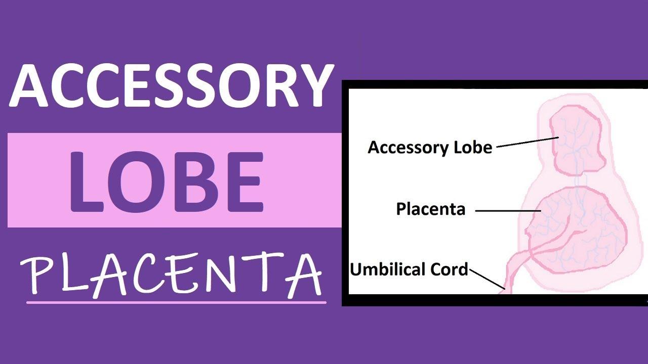 Accessory Lobe Placenta | Succenturiate Placenta Experience | Pregnancy Vlog