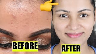 My Skincare Routine| Remove Pimples/Acne Blemishes In 7 Days Very easy In Hindi