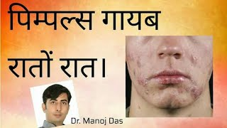 How To Remove Pimples Overnight | Acne Treatment | Dr manoj das