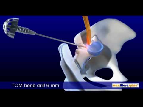 DB 115 Endoskopische Bandscheibenoperation - PAL 16:9 / DB 115 Endoscopic Disc Surgery - PAL 16:9