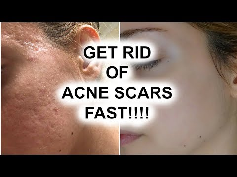 HOW TO GET RID OF ACNE SCARS  || Pershii