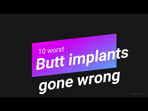 butt-implant-gone-wrong-kim-kardashian-sucking-ray-j-s-dick