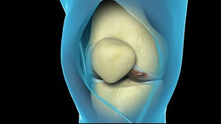 Total Knee Replacement Surgery | Nucleus Health