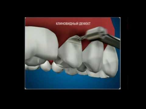 Клиновидный дефект зубов причины и лечение, профилактика