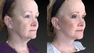 Facial Rejuvenation 3D Before and After - 2
