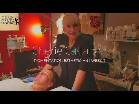 TSG2018 | Cherie Callahan | Pigmentation | Week 7