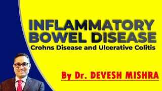 Crohn's disease and ulcerative colitis: Differences.