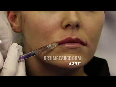 Does Aspiration before Injection of Dermal Fillers Work? Proof