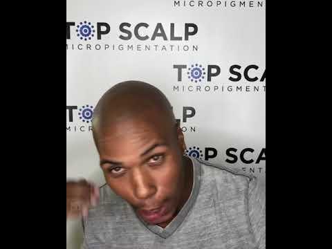 Top Scalp Micropigmentation