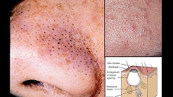 hqdefault - Do Blackheads Cause Acne