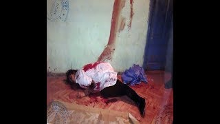 KRİMİNAL(ARB)- Cinayət işi № 160016145 - Vərəm dispanserində qayınanasını öldürən E.Hüseynov-