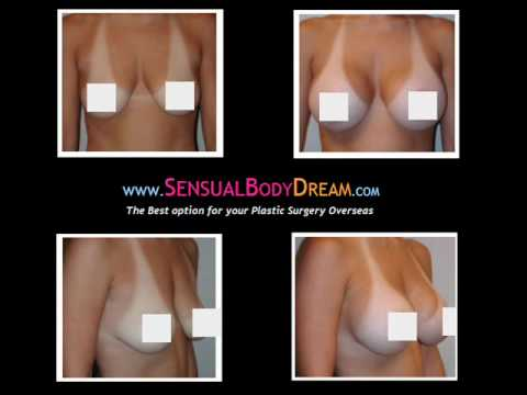 Inexpensive breast augmentation