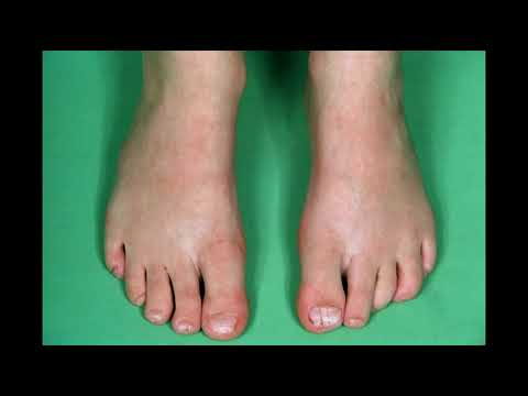 Tea Tree Oil for Toenail Fungus: Toenail Fungus Tea Tree Oil