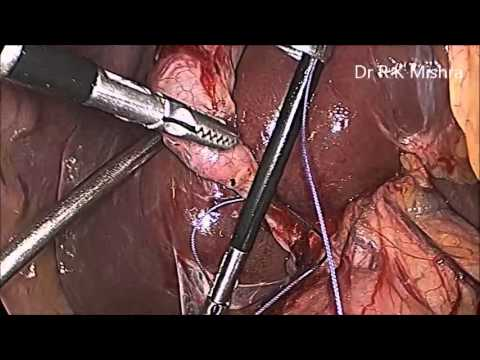 laparoscopic cholecystectomy Surgical treatment of gallstone disease has changed dramatically because of the  introduction of laparoscopic cholecystectomy in some.