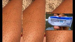 Crème miracle pour les points noirs sur les jambes ( strawberry legs ) ...