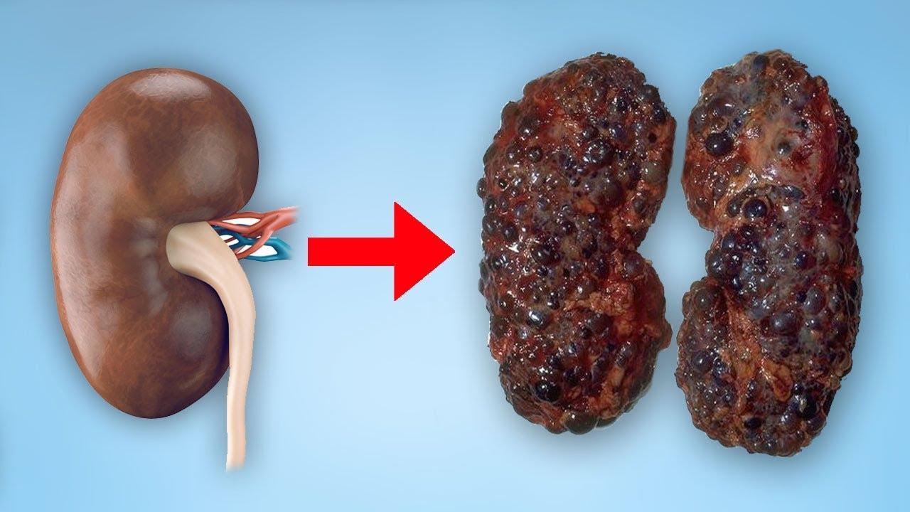 6 Dinge, die deine Nieren schädigen können! - YouTube