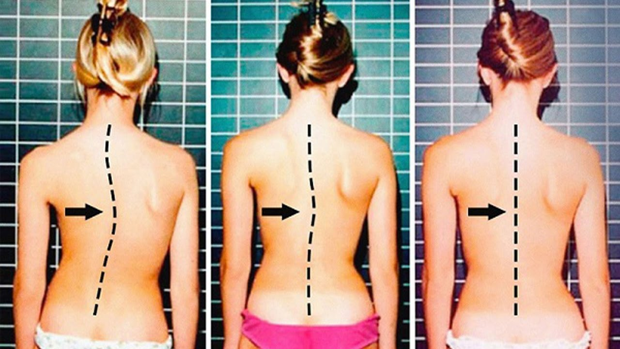 How to Straighten Your Spine