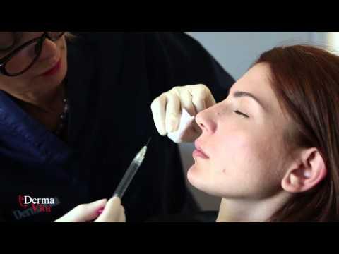 Оформяне на устни с хиалуронова киселина Derma Vita