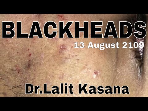 BLACKHEADS REMOVAL BY DR LALIT KASANA (13 August 2019) - YouTube