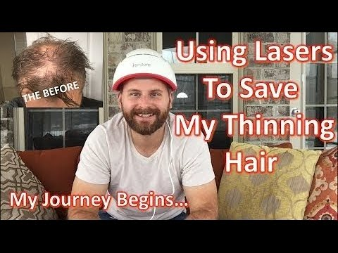 using-laser-hair-growth-therapy-to-stop-and-reverse-my-hair-loss---irestore-professional