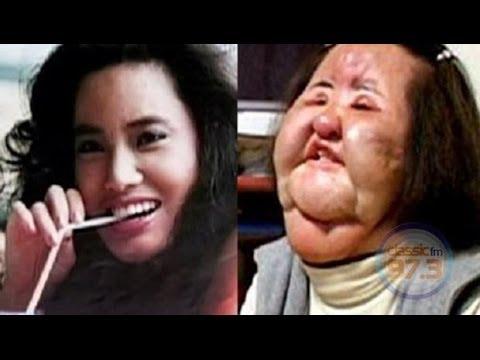 Top Ten weird, most popular and trending plastic surgery ...