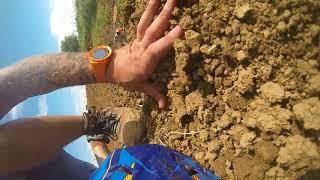 Bad Motocross crash (Broken back)