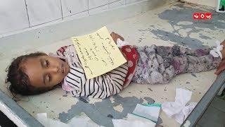الحوثي يواصل ذبح أطفال تعز