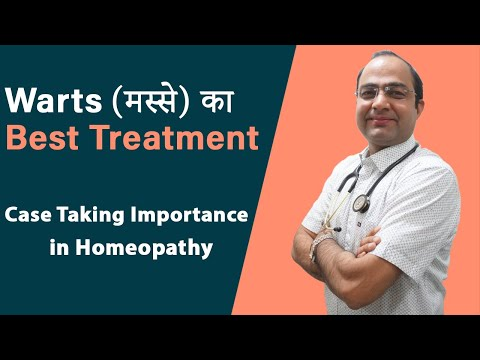 Importance of Case Taking in Homeopathy and Facial Warts ( मस्से ) Treatment Success Story