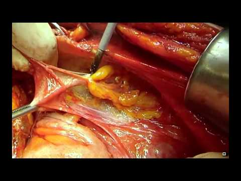 Surgical Management of Advanced Ovarian Cancer from YouTube · Duration:  8 minutes 35 seconds