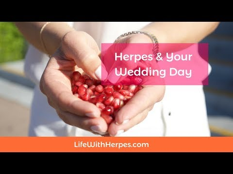 herpes dating tucson