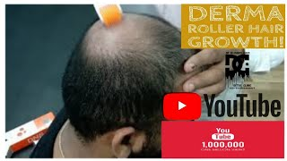 How to use Derma Roller For Hair Growth?