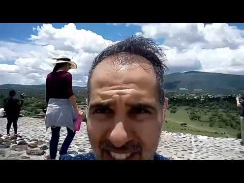 Hair Restoration Review July 2017 4 Year Post Op Mexico City Pyramids