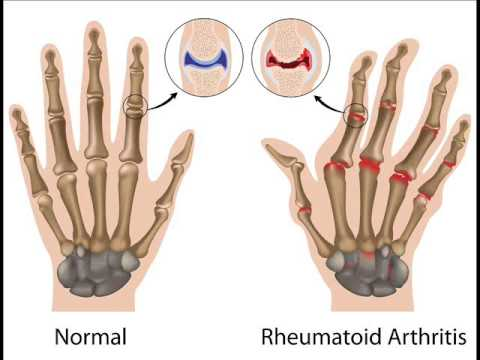 Rheumatoid Arthritis Treatment Binaural beats | Neuropathy Treatment | Good Vibes