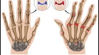 Rheumatoid Arthritis Treatment Binaural beats | Neuropathy Treatment | Good Vibes