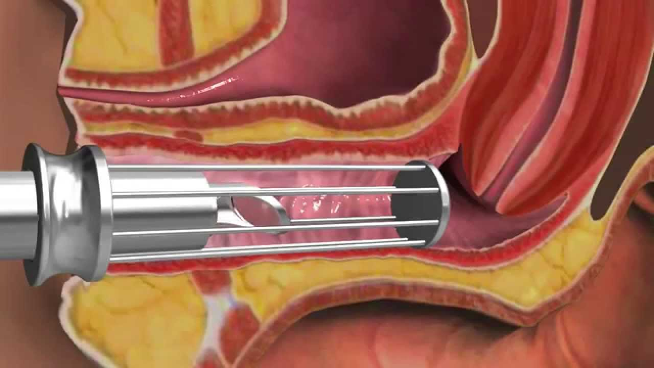Vaginal Rejuvenation Co2 Laser - Youtube-4664