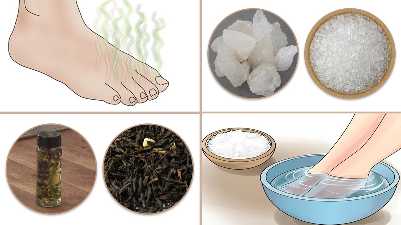 How Get Rid Stinky Feet Naturally Youtube