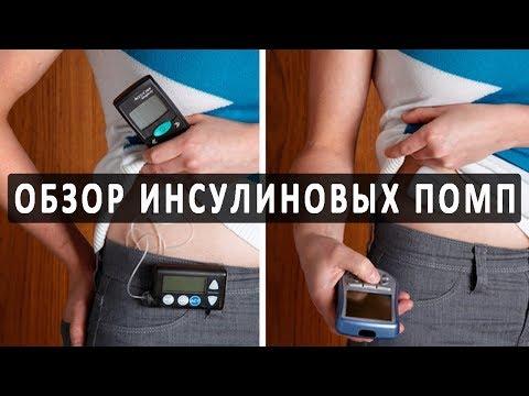Краткий обзор популярных инсулиновых помп
