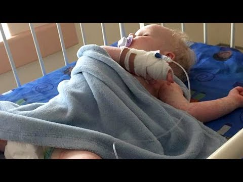 1-Year-Old Baby Nearly Dies From Herpes