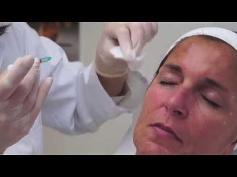 Injection au botox - Médecin esthétique à Lyon : Dr Valérie Gaillard