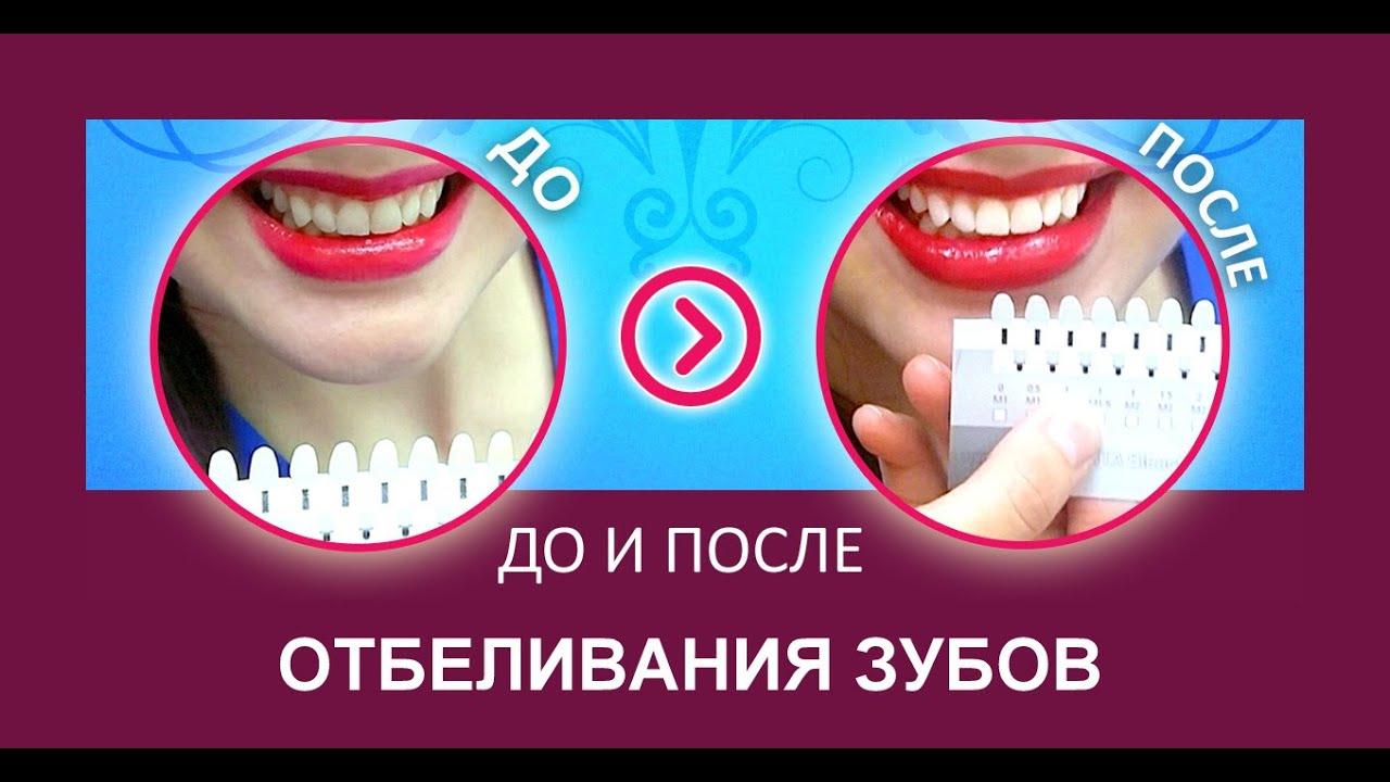 "Процедура отбеливания зубов (процесс отбеливания ""изнутри"")"