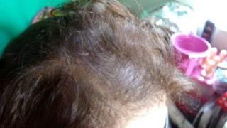 Antes e Depois -- Cauterização em cabe...