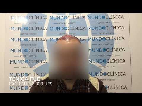 Injerto capilar / Mundo Clínica