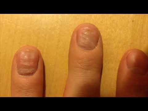Волнистые неровные ногти