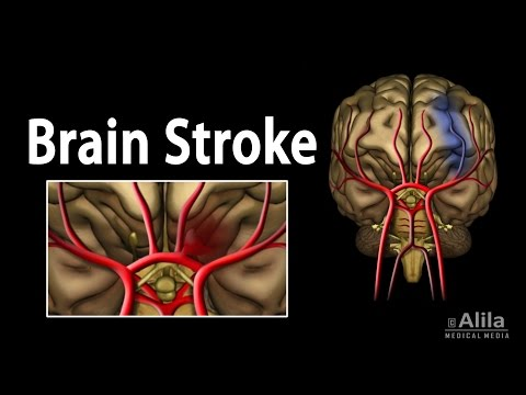 Brain Stroke, Types of, Causes, Pathology, Symptoms, Treatme