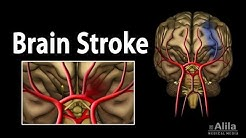 Brain Stroke, Types of, Causes, Pathology, Symptoms, Treatment and Prevention, Animation.