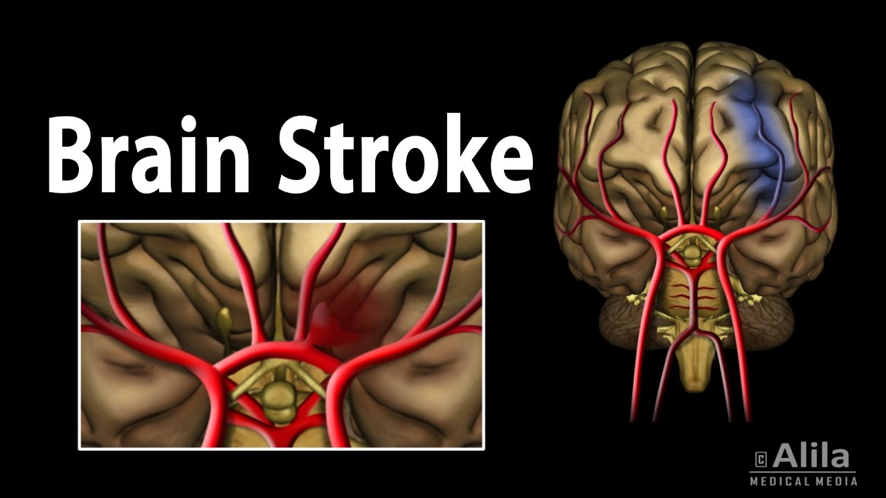 Brain Stroke, Types of, Causes, Pathology, Symptoms, Treatment and ...