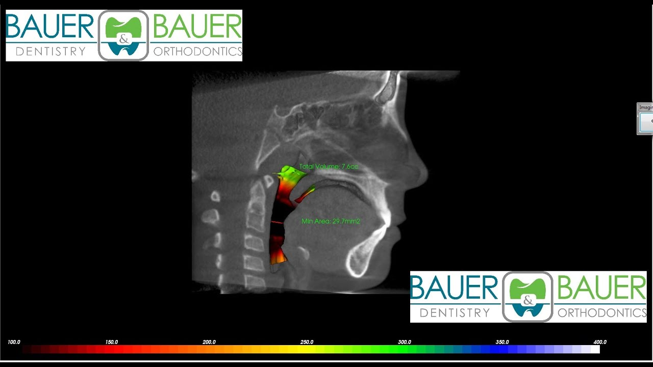 use of cbct in orthodontics a review Keywords: cone beam computed tomography, surgical orthodontics introduction orthodontics is a field, which places a significant amount of emphasis on the modification of abnormal craniofacial growth patterns, in addition to the correction of dental malrelationships.