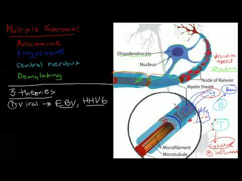 Pathophysiology of multiple sclerosis