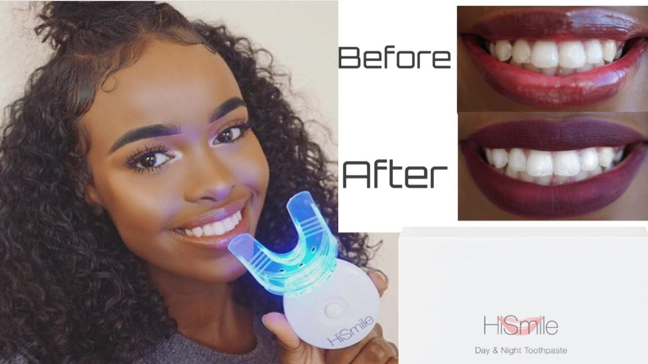 Hi Smile Review Does It Work Youtube